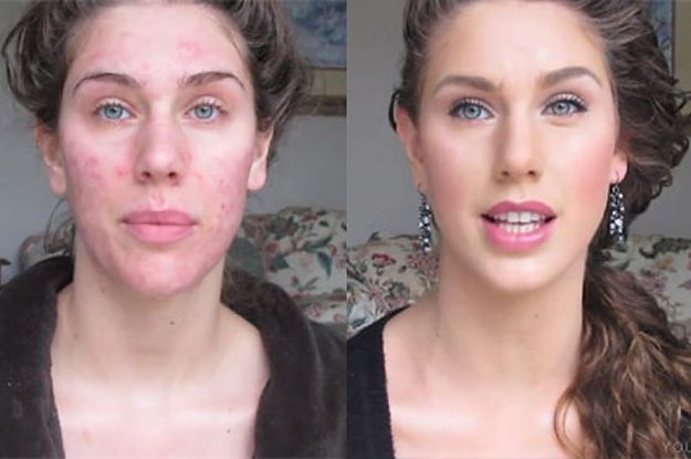 Dating a guy with bad acne
