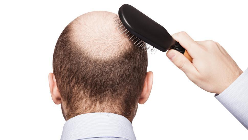 Причины выпадения волос у молодых мужчин
