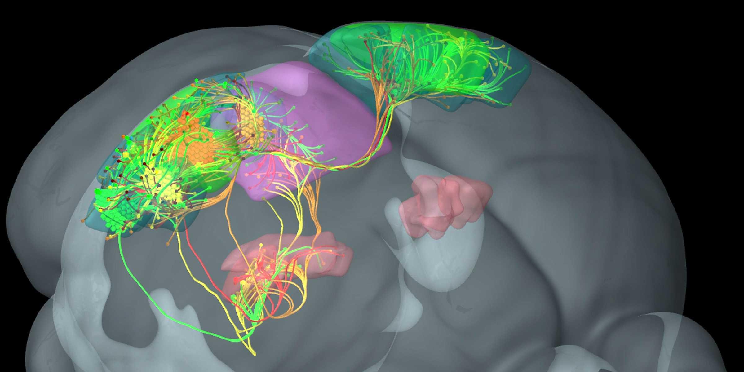 Фото мозг старого человека 5