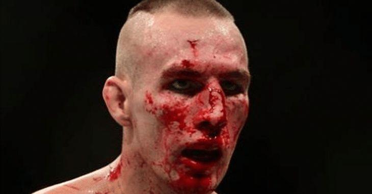ufc broken face - photo #22