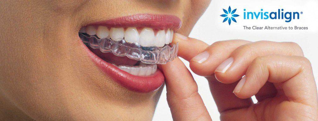 Трейнер для исправления кривизны зубов