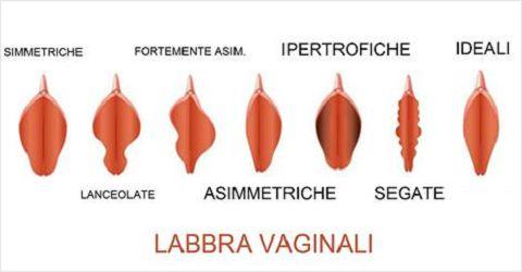 vari tipi di vagine