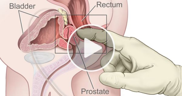 15-Second Male Bedtime Ritual Shrinks Your Prostate In Just Weeks