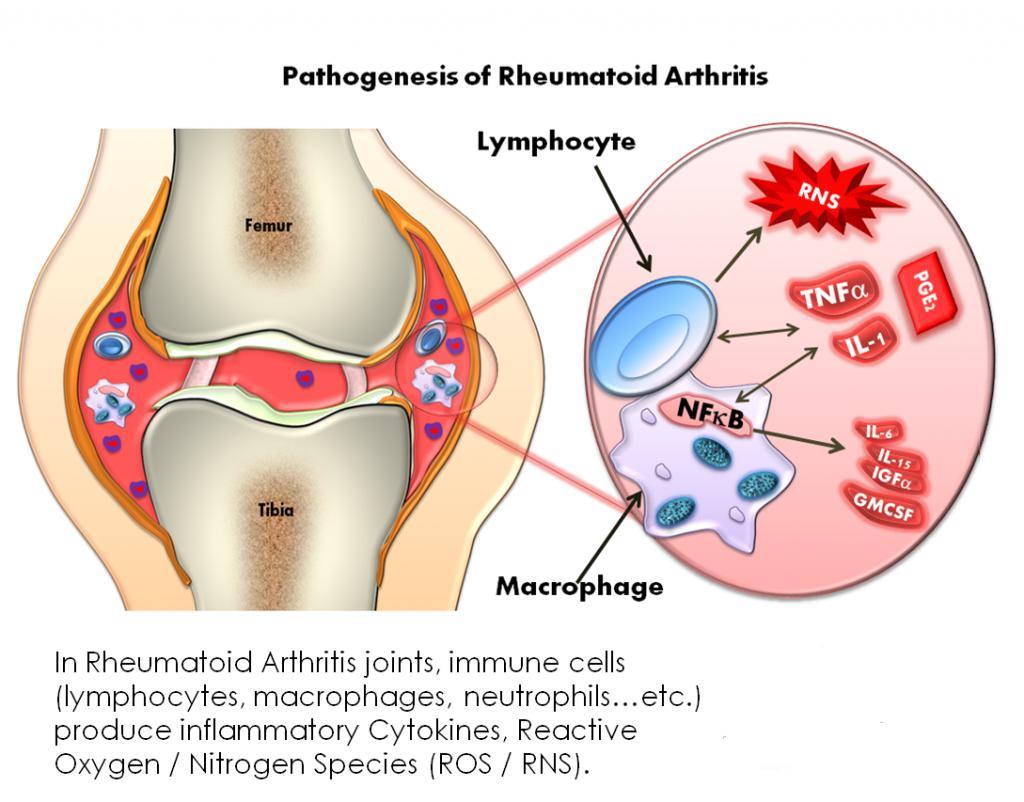 review article rheumatoid arthritis