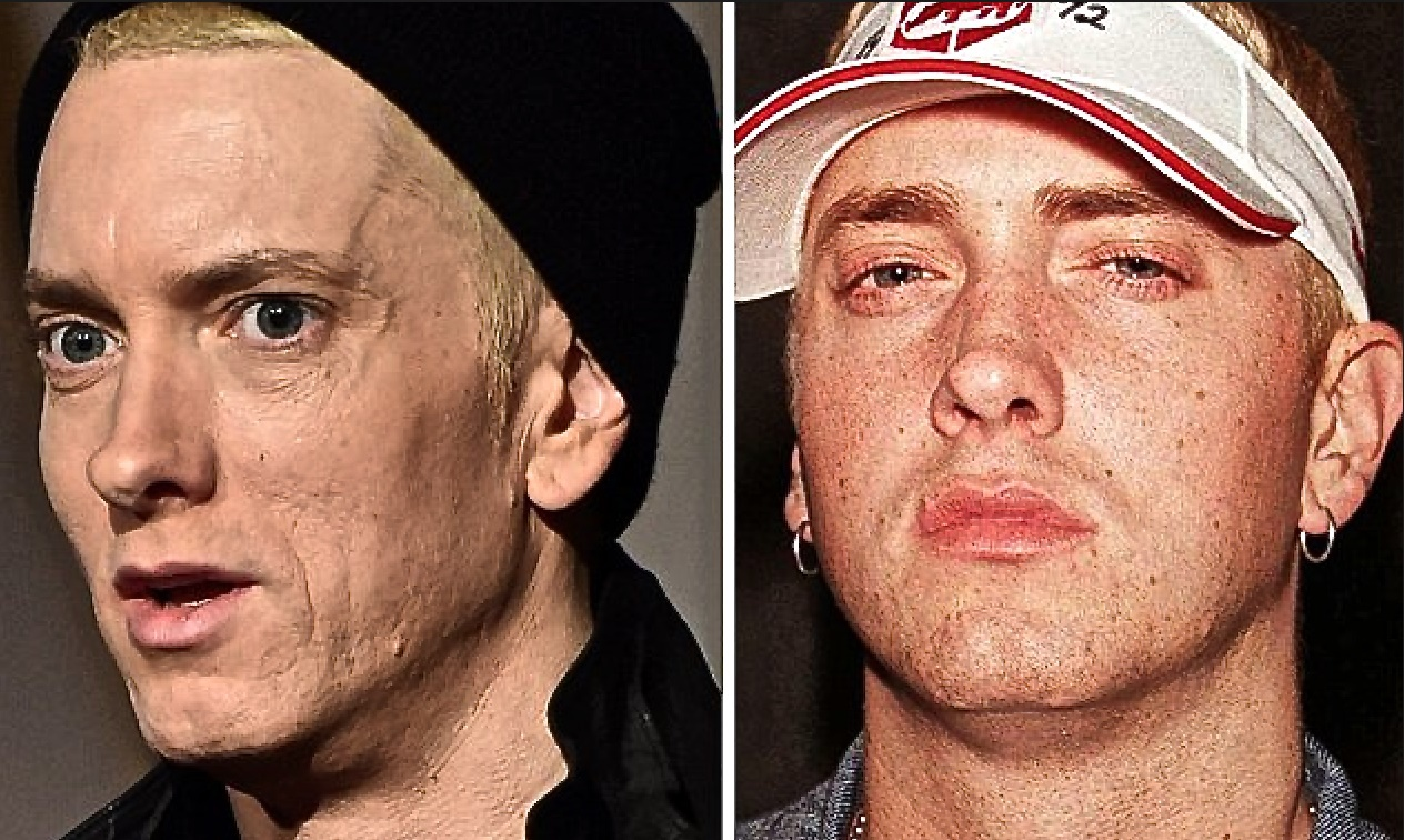 Drugs Were A Bad Choice Eminem Looks Haggard And Gaunt At