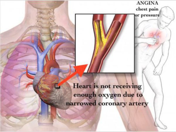 angina pectoris symptoms risks and treatments Acupuncture reduces the frequency and intensity of angina, facilitates decreases in medication dosage levels, and prevents resistance to drug therapy efficaciousness a team of eight researchers conclude that acupuncture is safe and effective for the treatment of stable angina wading through the.